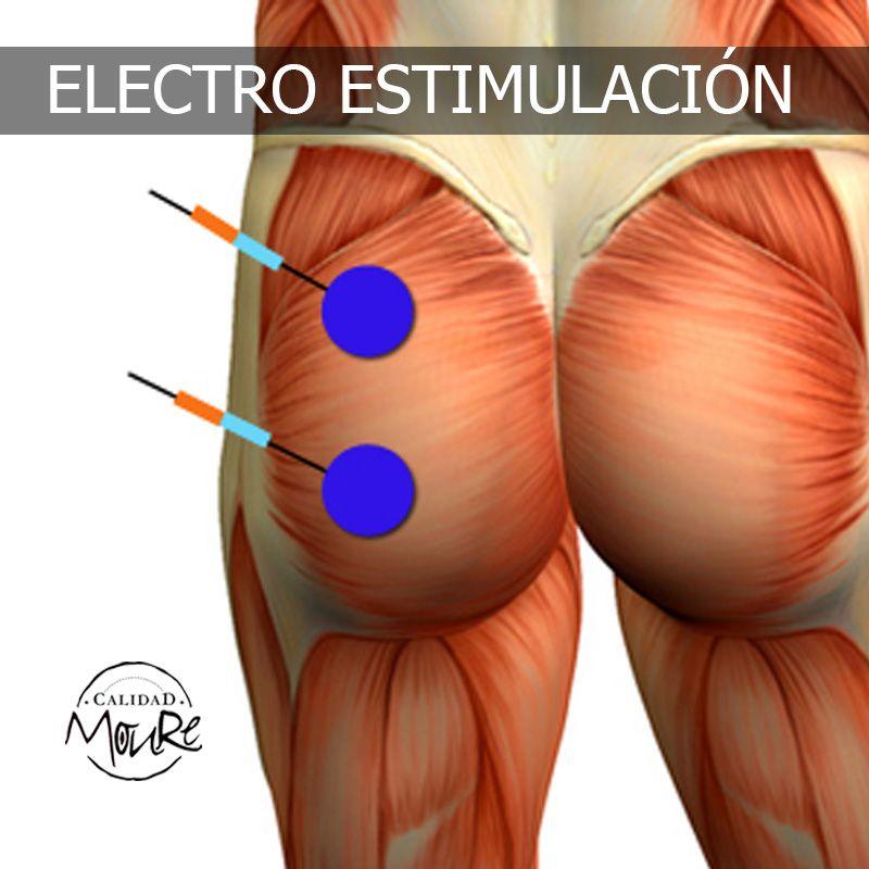 ELECTROESTIMULACIÓN TRATAMIENTO GLUTEOS