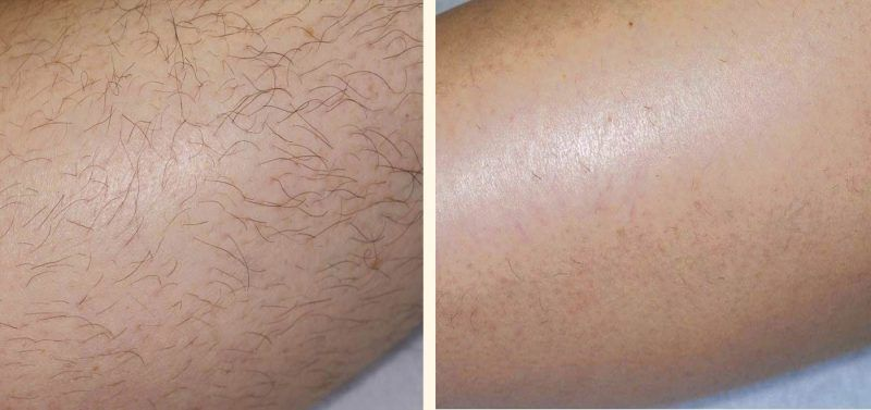 depilación laser antes e después