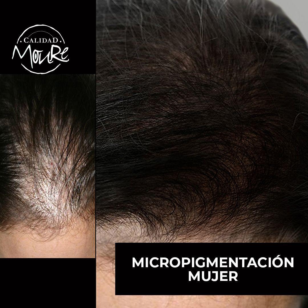 MICROPIGMENTACION MUJER MOURE MAS DENSIDAD PELO LARGO (8)