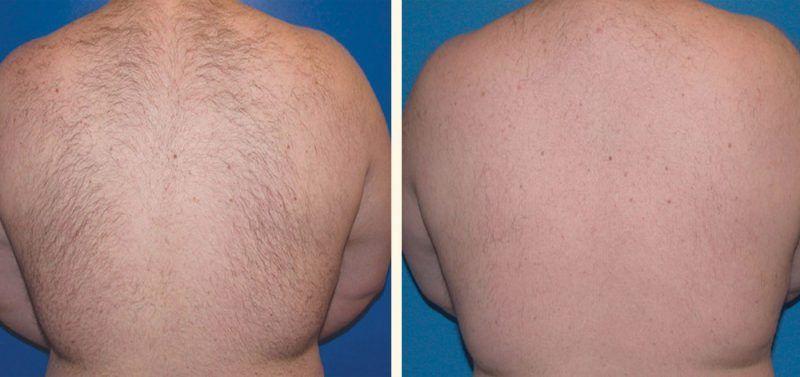 depilación laser hombre espaldas
