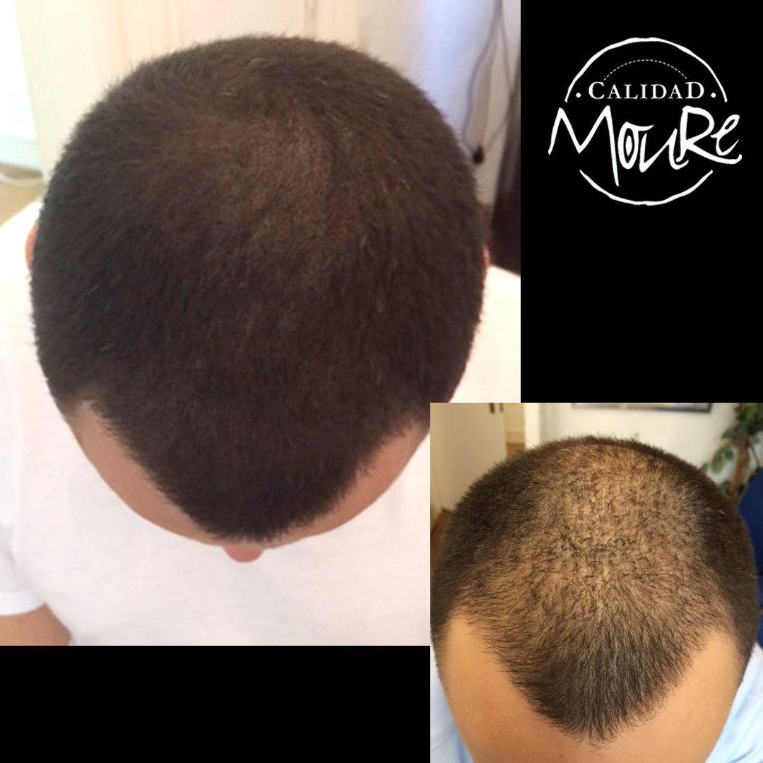 Micropigmentación capilar hombre relleno pelo largo (1)