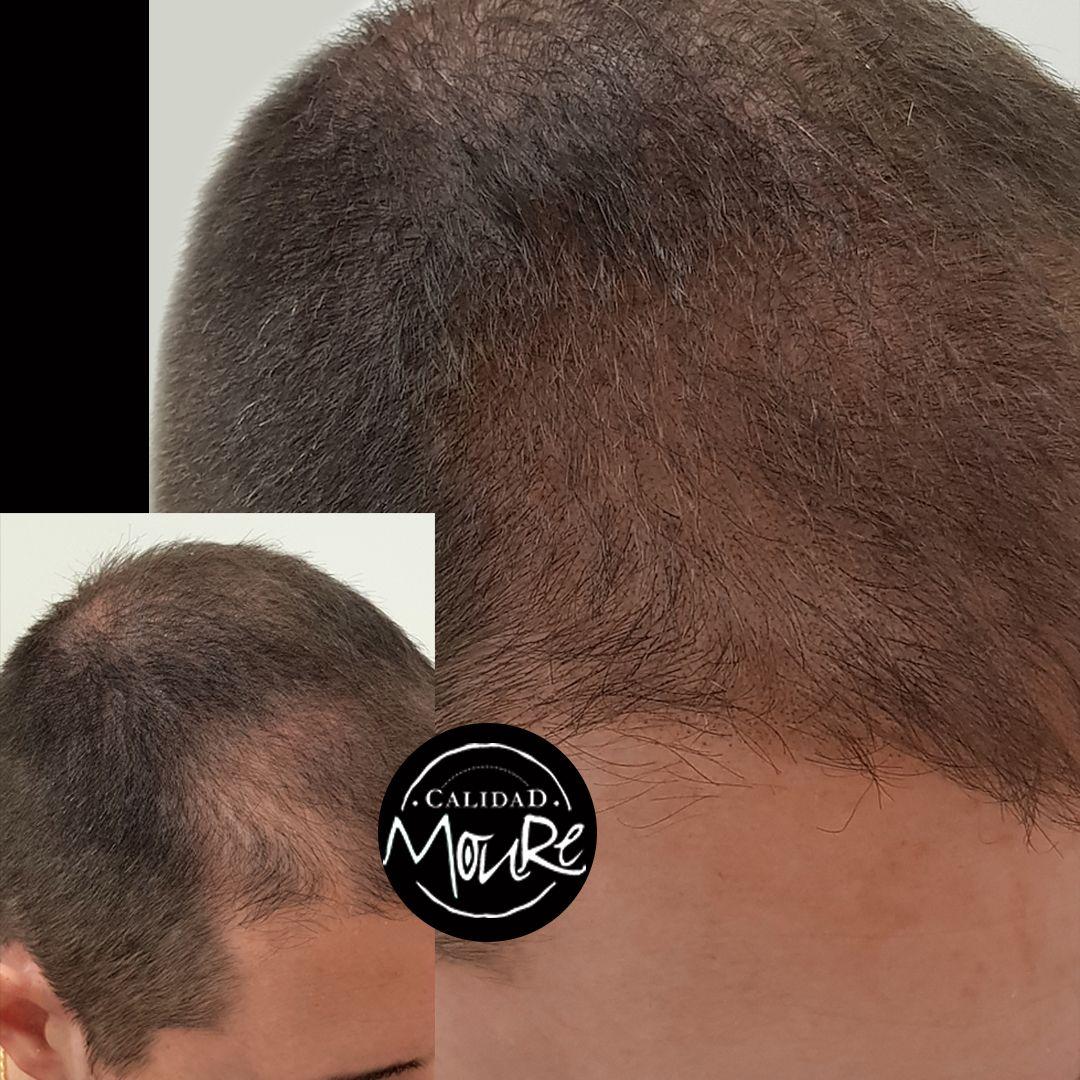 Micropigmentación capilar hombre relleno pelo largo (2)