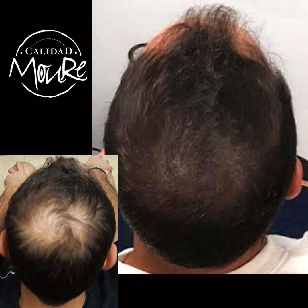 Micropigmentación capilar hombre relleno pelo largo (3)