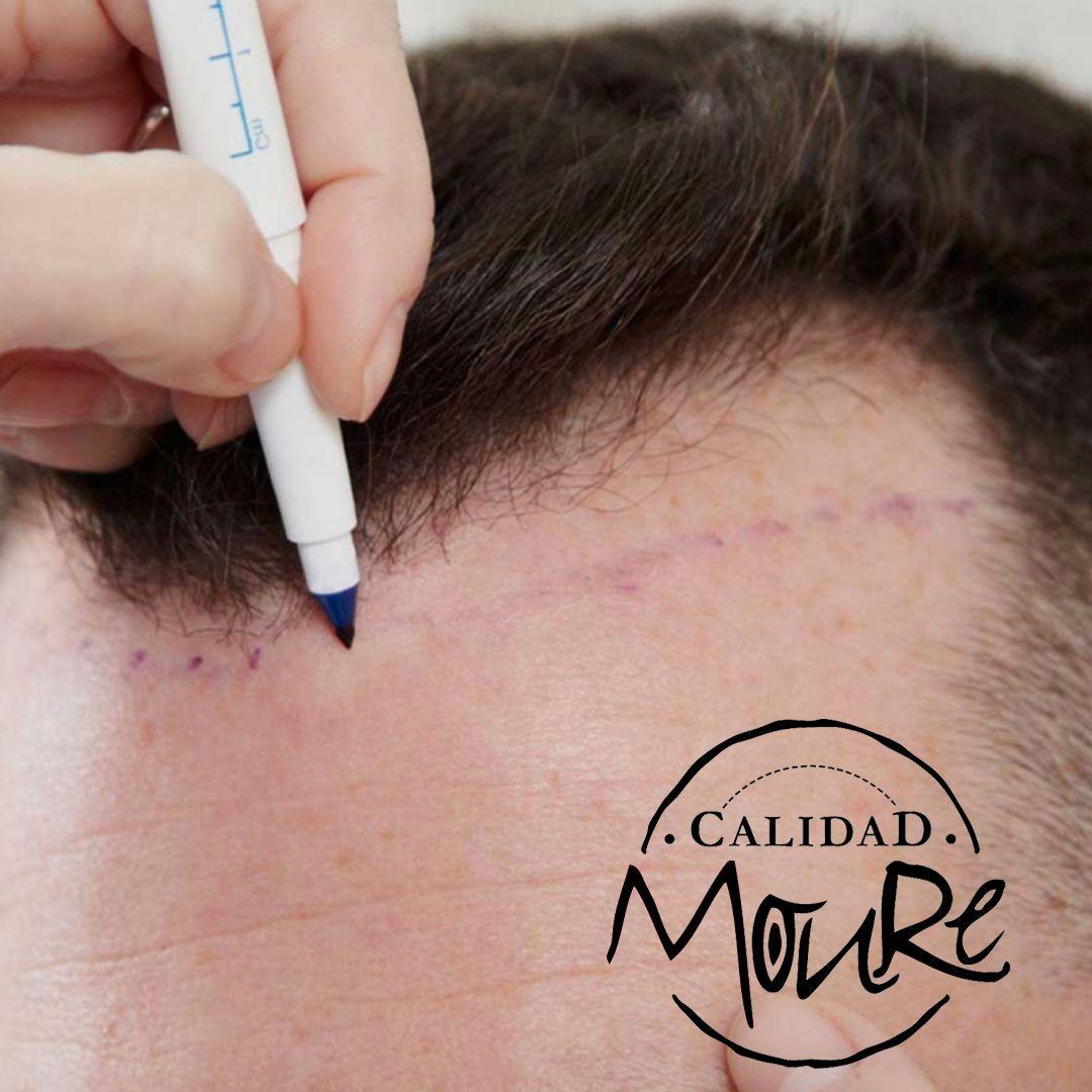 Micropigmentación capilar hombre relleno pelo largo (6)
