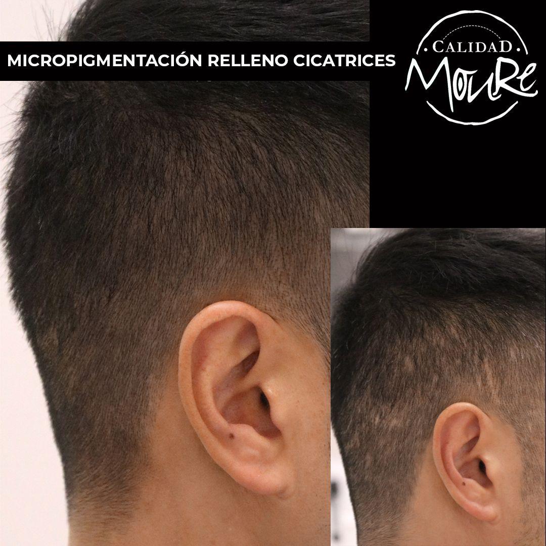 Micropigmentación capilar hombre relleno pelo largo (7)