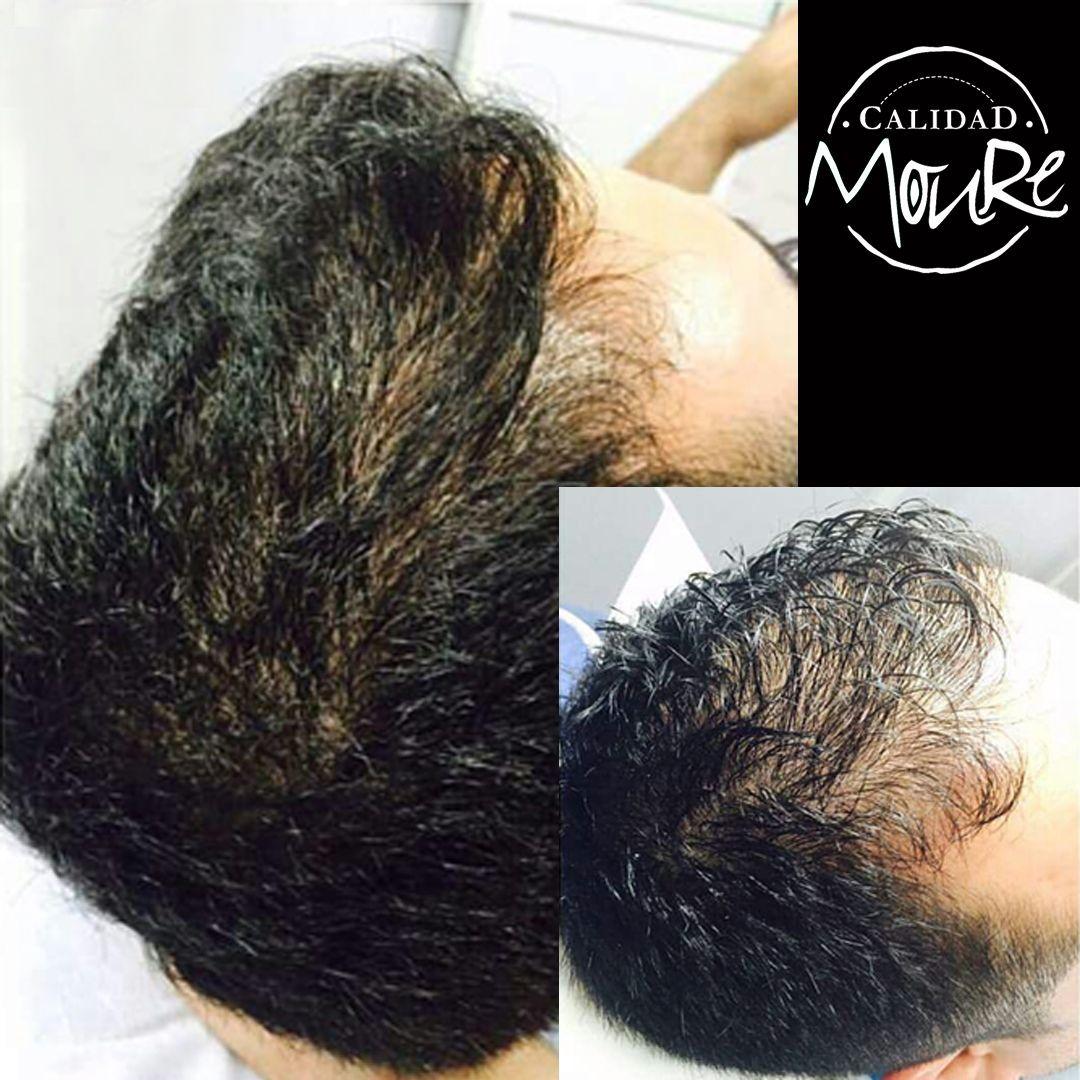 Micropigmentación capilar hombre relleno pelo largo (8)
