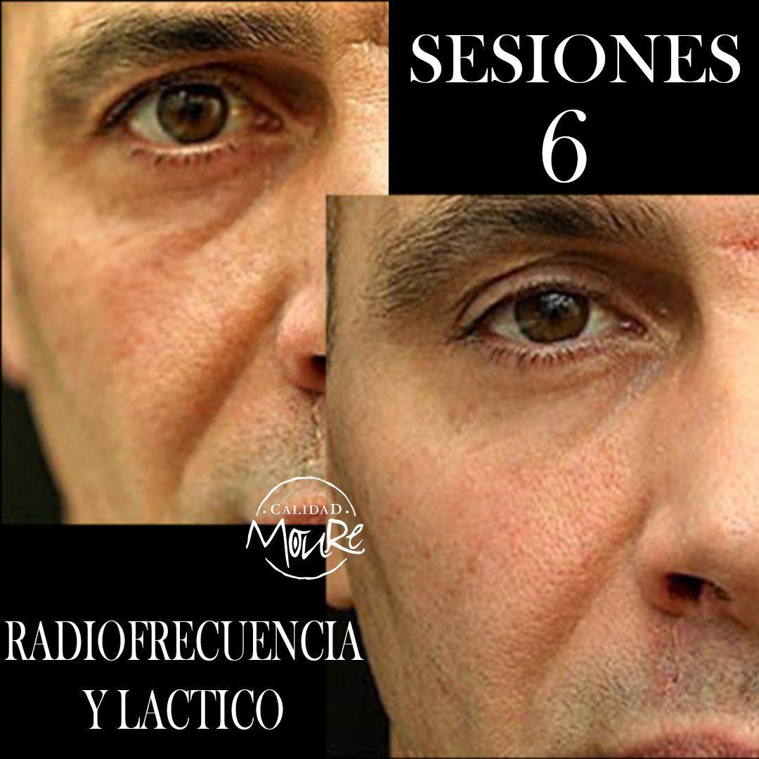 RADIOFRECUENCIA LASER GALVANICA Y ACIDO HIALURONICO CENTRO DE ESTETICA MOURE MALLORCA (13)