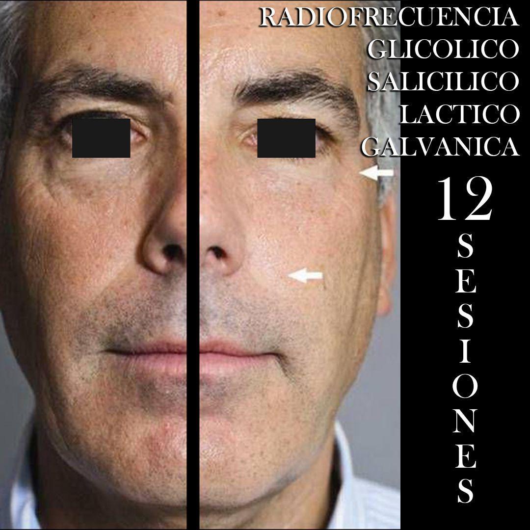 RADIOFRECUENCIA LASER GALVANICA Y ACIDO HIALURONICO CENTRO DE ESTETICA MOURE MALLORCA (3)