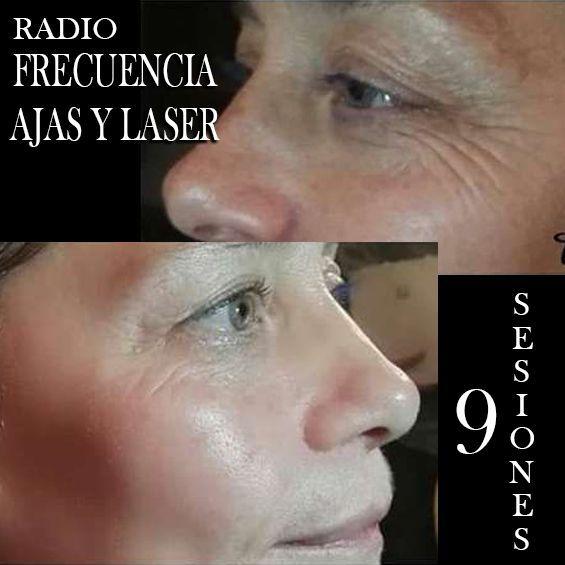 RADIOFRECUENCIA LASER GALVANICA Y ACIDO HIALURONICO CENTRO DE ESTETICA MOURE MALLORCA (4)