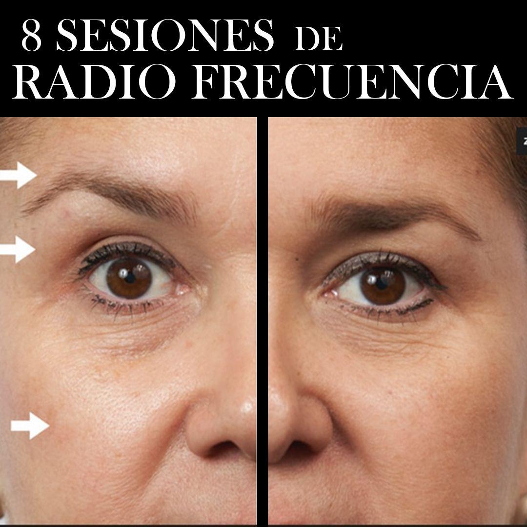 RADIOFRECUENCIA LASER GALVANICA Y ACIDO HIALURONICO CENTRO DE ESTETICA MOURE MALLORCA (8)