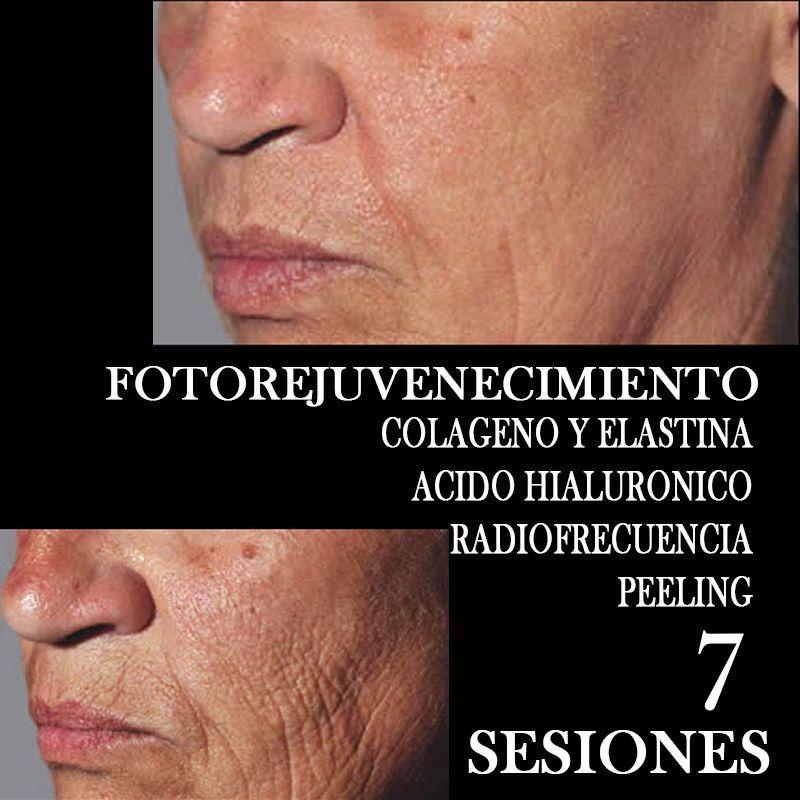 TRATAMIENTO FOTOREJUVENECIMIENTO FACIAL CENTROS MOURE MALLORCA (2)