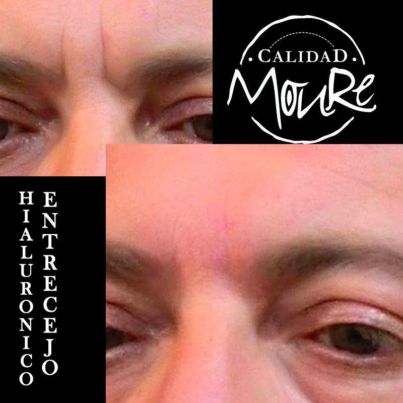 ACIDO HIALURONICO ENTRECEJO NASOJENIANO, OJOS CENTROS MOURE MALLORCA (10)
