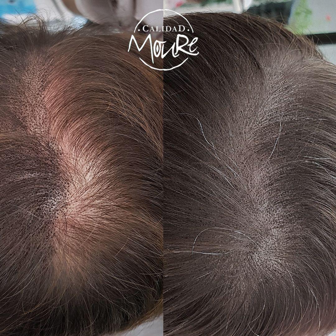 ¿FUNCIONA LA MICROPIGMENTACIÓN CAPILAR EN PELO LARGO MALLORCA? Una de las principales dudas de nuestros clientes es si la micropigmentación capilar pelo largo realmente funciona o no. Existen muchas personas a las que no les agrada la idea de tener que raparse el pelo por completo. En estos casos, la micropigmentación se puede convertir en la gran solución para aquellas personas que desean mantener el pelo largo. Obviamente, no se trata de una opción válida para cualquier caso. En Centros Moure sabemos que todo depende de la situación particular de cada persona. Esta técnica capilar es perfecta para todas aquellas personas que comienzan a notar como empiezan a surgir las temidas y antiestéticas entradas. Son principalmente aquellas personas afectadas por alopecia androgénica quienes suelen tener mayores problemas de pérdida de cabello en estas zonas del cuero cabelludo. Es precisamente en estos supuestos en los que los resultados que se consiguen en Centros Moure son realmente estupendos. Mediante este tratamiento de micropigmentación capilar en pelo largo se logra mejorar el aspecto de la línea del pelo. De este modo se logra mostrar un cabello con aspecto más poblado y denso. Por otro lado, aquellas personas que han sufrido la pérdida de cabello en general por todo el cuerpo cabelludo, también pueden beneficiarse de esta técnica de micropigmentación capilar en pelo largo. Si la caída de cabello se distribuye por toda la cabeza, la micropigmentación se puede convertir en una gran ayuda. Ofrece un aspecto de mayor espesor y densidad, resultando muy atractivo. Si tu cabello se debilita y pierde grosor se convierte en un perfecto aliado. Eso sí, es clave que la caída del cabello sea difusa, nunca localizada en una zona en concreto.